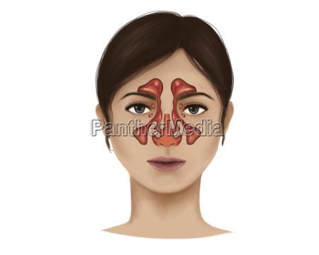 anatomia dei seni nasali